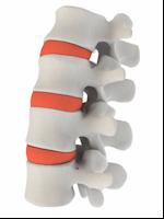 La hernie discale  traitements chiropratique Sillery Ste-foy