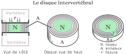 hernie discale disc