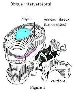 disque intervertébral