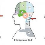 Mal de tête / Céphalée