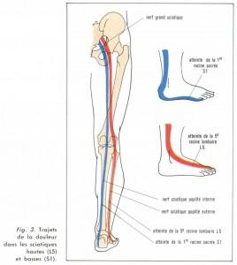 sciatiques nerf sciatalgie
