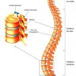 Discopathie, symptômes, causes, et  traitements