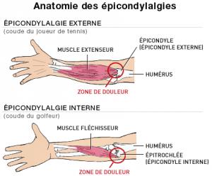 L'épicondylite / tennis elbow