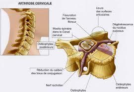 Cervicalgie / Névralgie cervicale