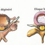 La hernie discale : symptômes, causes, diagnostic et traitement