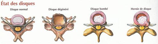 guerir nevralgie cervico