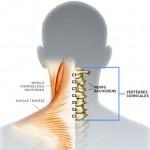 Cervicalgie / Névralgie cervicale:  6 questions fréquentes lors d'un mal de cou