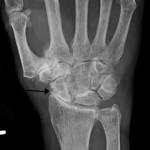 L'arthrose: causes, symptômes, diagnostic et traitement