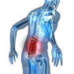 Tour de rein et Lombalgie – causes, diagnostic et traitement