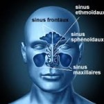 L' Inflammation des sinus (Sinusite)