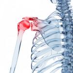 Tendinite, Capsulite…quand nous souffrons des épaules
