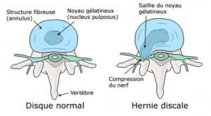 Hernie discale-1