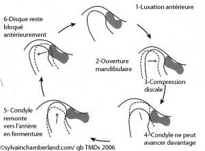 Mâchoire-ATM-2-dysfonction