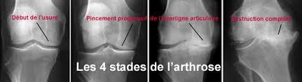 Genoux-arthrose