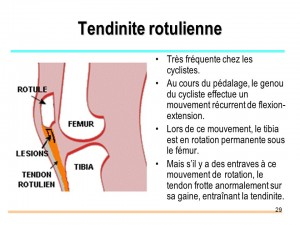Tendinite rotulienne
