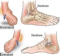douleur dans le pied
