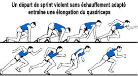 Jambe-élongation