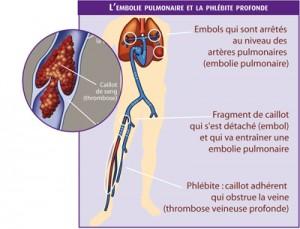 Phlébite-jambe-embolie pulm.
