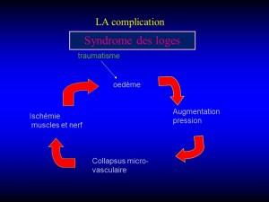Syndrôme des loges-1