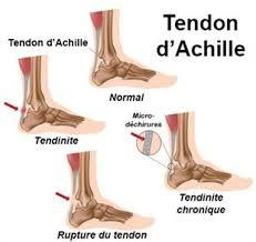douleur au niveau du pied