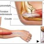 Epicondylite / Tennis Elbow