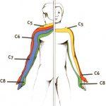 Névralgie cervicale / Brachialgie ou Cervicobrachialgie