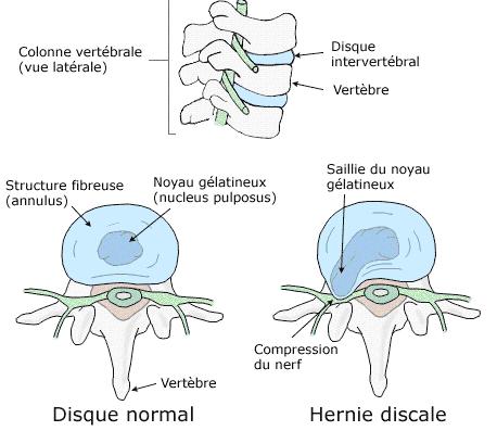 Hernie discale