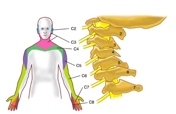 Névralgie cervicale / Névralgie cervico-brachiale ...
