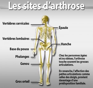 Arthrose-sites fréquents