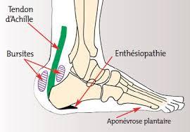 Bursite-tendon d'Achille