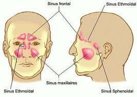 Sinus-5