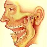 La douleur et le mal à la mâchoire