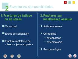 Fracture stress-pied